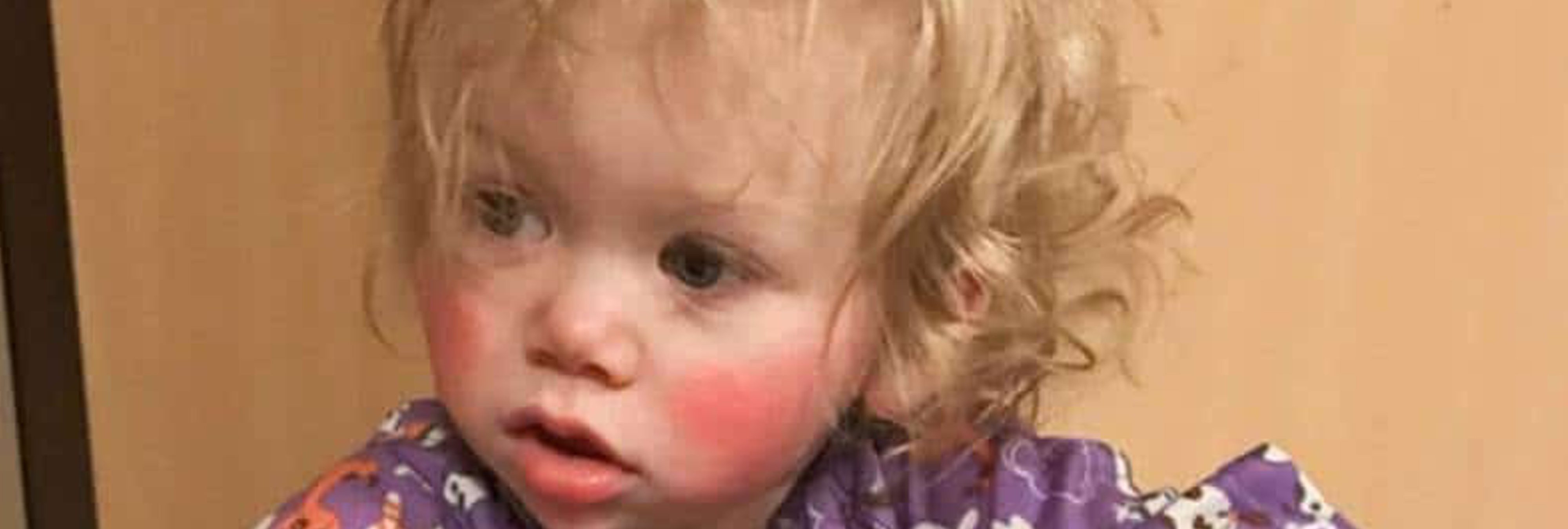 La niña que sufre alergia a sus propias lágrimas: le provocan quemaduras de tercer grado