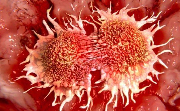 Los casos de cáncer están aumentando las muertes de la población