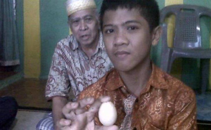 En la semana que lleva en observación, Akmal no ha vuelto a expulsar huevos