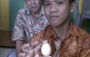Un niño en Indonesia asegura que pone huevos: expulsó dos en el hospital