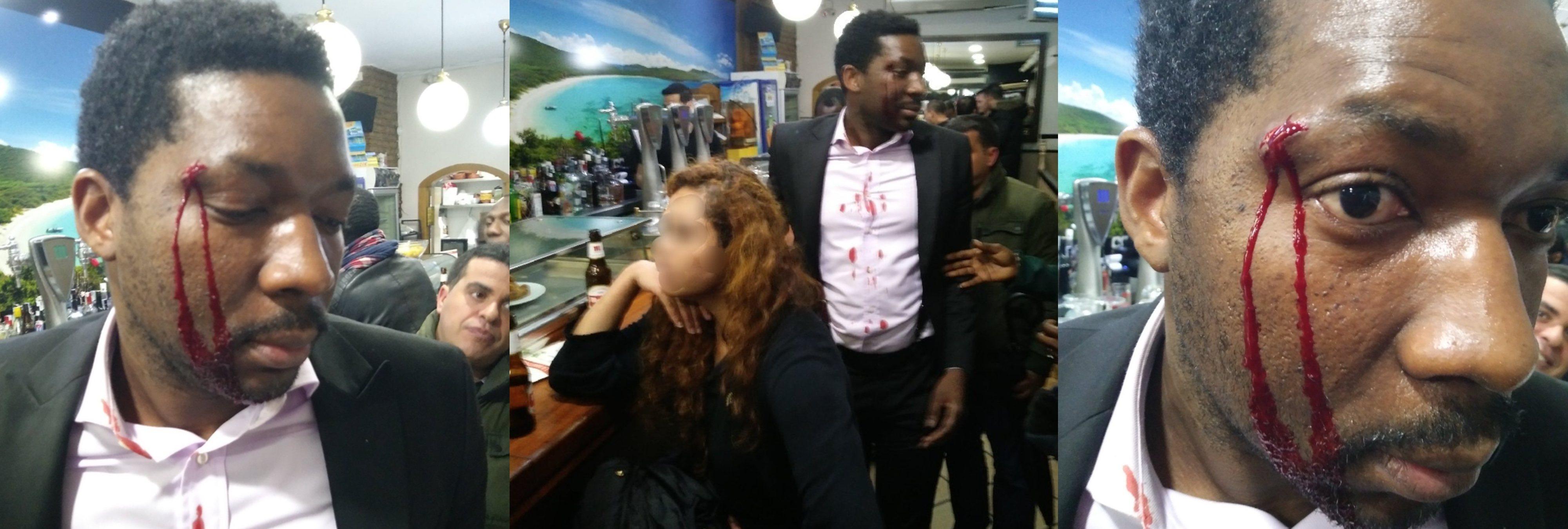 """Agresión racista a un actor en Madrid: """"Soy blanca, te puedo matar y no me pasa nada"""""""