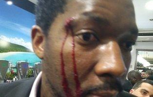"""La Policía no ve delito de odio en la agresión a un actor negro sino un """"altercado de bar"""""""