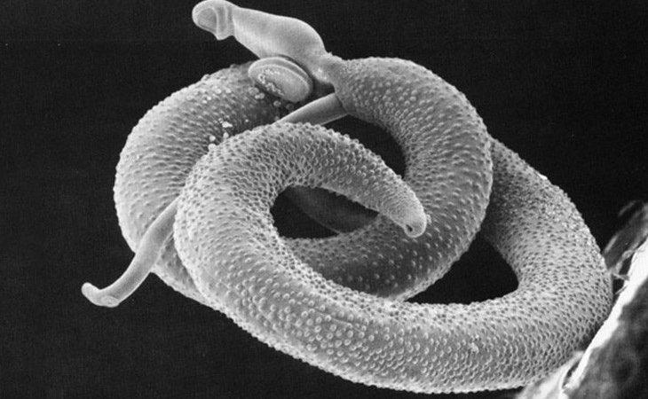 La bacteria produce la muerte en un dos de cada diez contagios