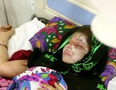 Un hombre ataca con ácido a su mujer mientras duerme por dar a luz una niña en la India