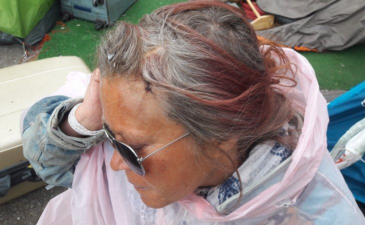Mientras dormía, Susana fue agredida con un bate de beisbol. /Foto: Twitter Lagarder