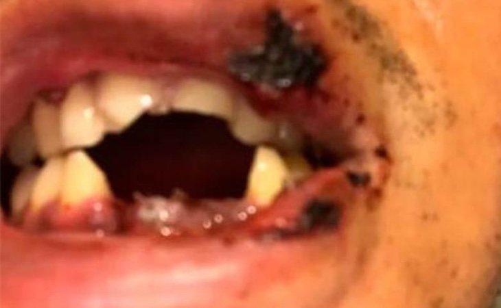Matt recibió 40 puntos de sutura en la boca