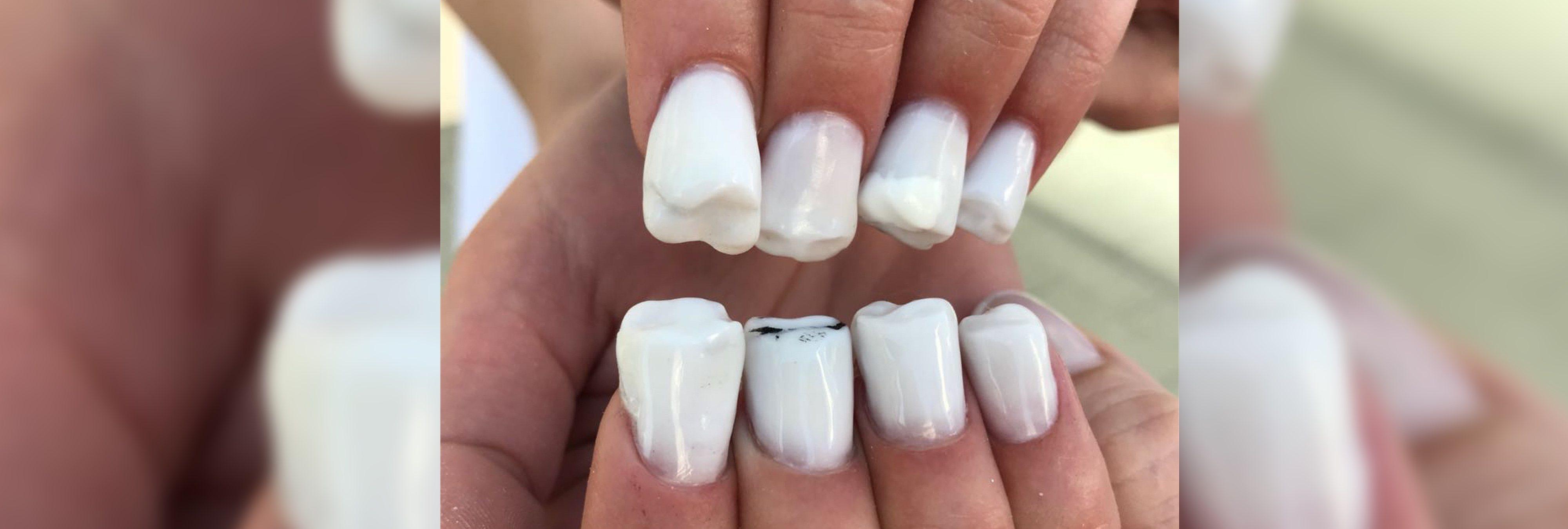 Las 'uñas dentadura': la nueva tendencia que está causando furor