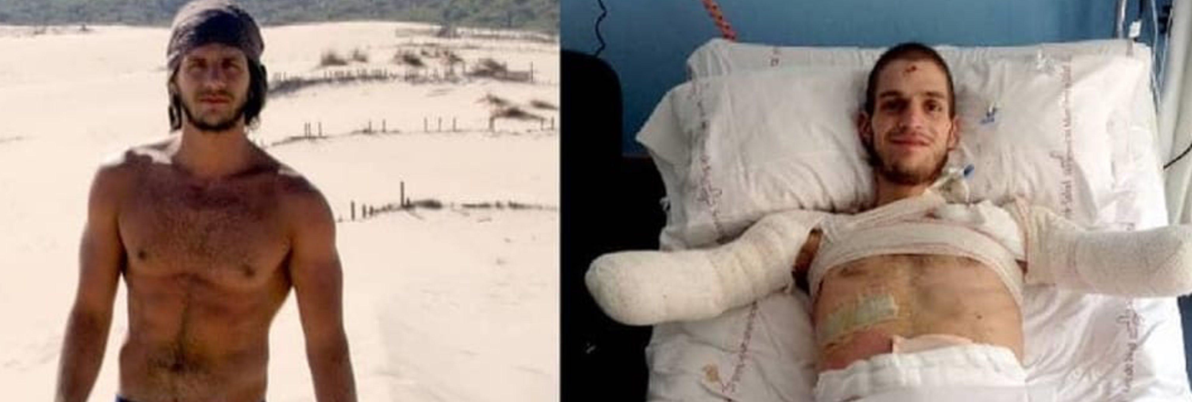Un joven italiano pierde las cuatro extremidades en Murcia por una meningitis