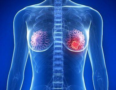 Consiguen eliminar toda la metástasis de una paciente con cáncer de mama en Estados Unidos