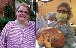 No estaba obesa ni embarazada: tenía un quiste ovárico de 22 kilos en su organismo