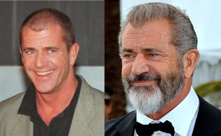 Mel Gibson se sometió a un injerto de pelo