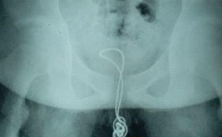 La radiografía del joven con el cargador en el pene