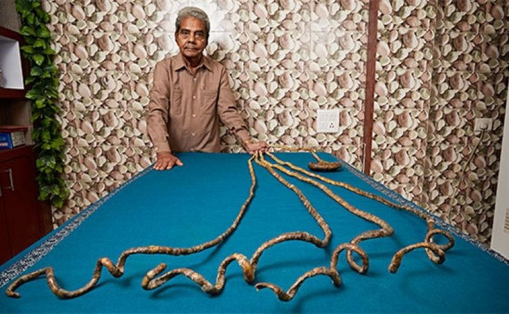 Shridhar Chillal<strong></strong>antes de cortarse las uñas