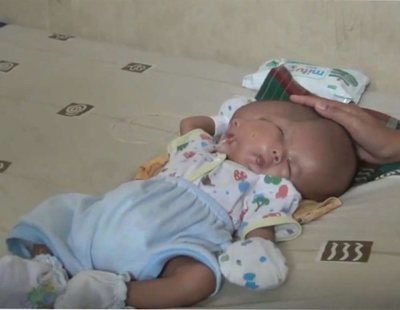 Nace un bebé con dos caras y dos cerebros porque su gemelo no se desarrolló