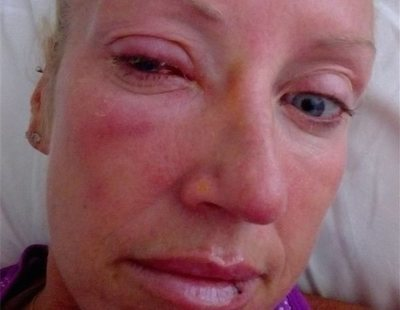 Se queda ciega por un parásito que le devoró el ojo al quedarse pegado en las lentillas