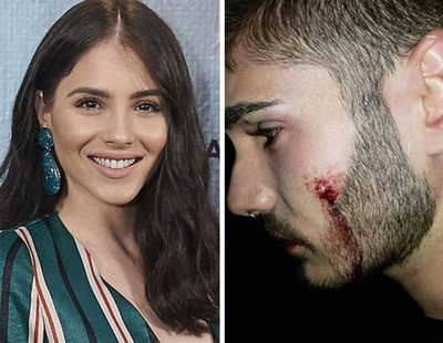 Andrea Duro denuncia la agresión homófoba sufrida por su primo en una discoteca