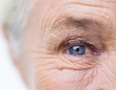 Estas son las arrugas que indican si tienes mayor riesgo de sufrir un infarto