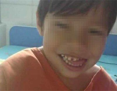 """Un niño se queda sin riñones porque su médico se confundió: """"Saqué lo que no era"""""""