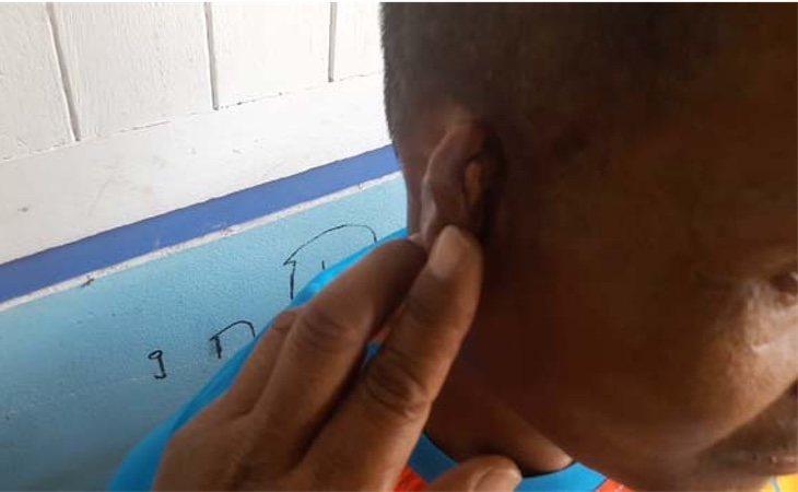 Somsuk tiene cicatrices en tdo el cuerpo por las palizas que le dieron cuando estaba solo./Foto: medio Sanook