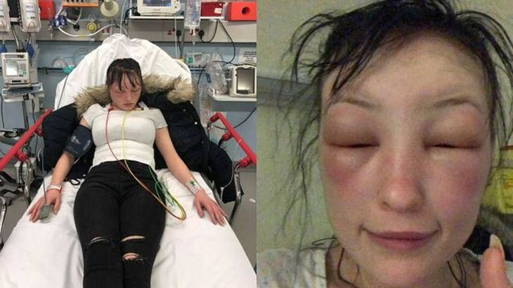 Lauren Woods estuvo cuatro dias sin poder abrir los ojos