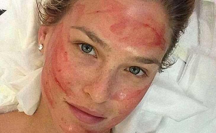 La supermodeloBar Refaeli tras una sesión de 'vampire facil'