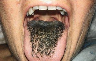 Una mujer acabó con la lengua negra y llena de pelos después de tomar antibióticos