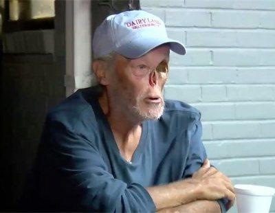 Echan a un hombre de una cafetería por tener el rostro desfigurado por el cáncer