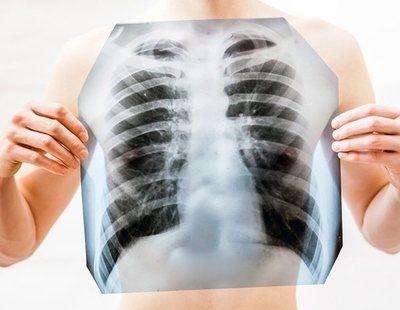 El trabajador vasco que congeló sus pulmones y ahora demuestra que murió por el amianto