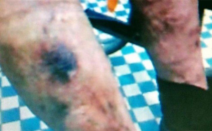 Fotografía de las heridas que se ha incorporado a la denuncia | Fuente: EP