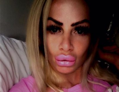 Se inyecta aceite de bebé para convertirse en la Barbie humana y termina hecha un cuadro