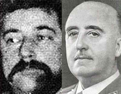 El hombre que pidió que le trasplantaran el cerebro de Franco