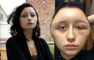 Se tiñe el pelo y termina con la cara deformada por una reacción alérgica