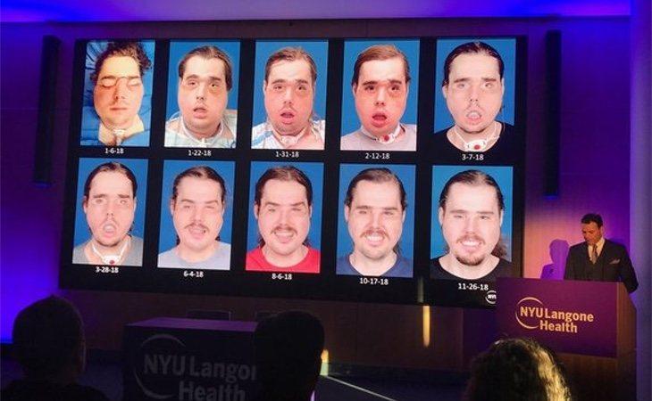 La evolución de su cara durante las intervenciones del doctor Rodríguez