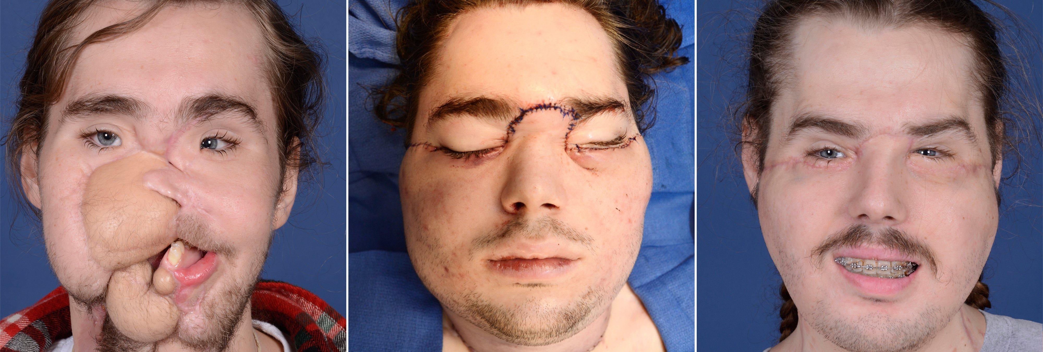 La historia del joven que ha recibido el transplante de cara más avanzado de la historia