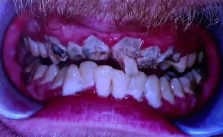 La maltrecha dentadura de Jay antes del tratamiento