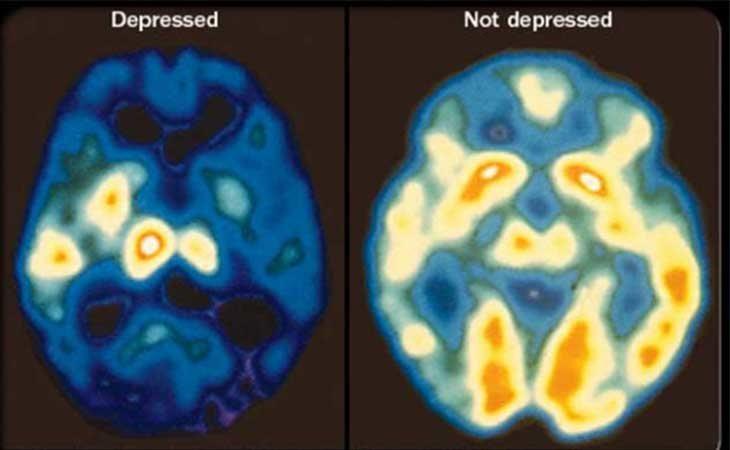 Cerebro depresivo y sano