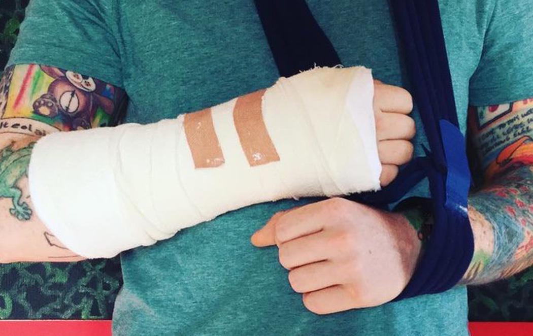 El cantante Ed Sheeran es atropellado mientras iba en bicicleta