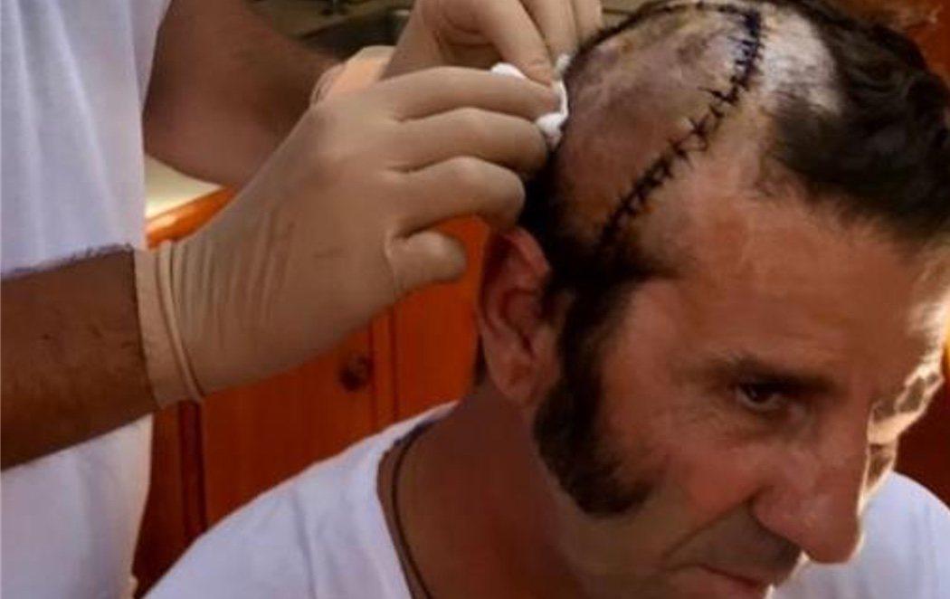 Juan José Padilla se recupera de la cornada con una impactante costura