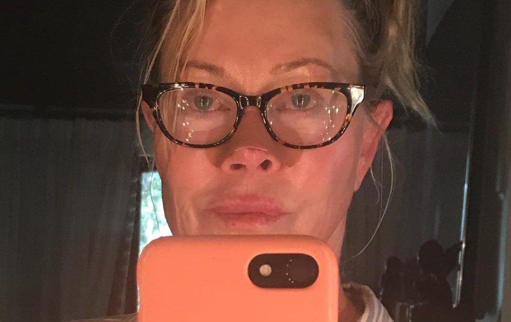 Melanie Griffith enseña cómo le ha afectado el cáncer de piel en la nariz