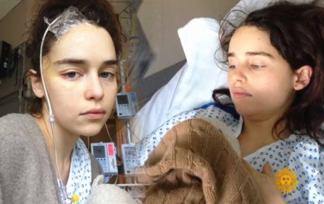 Emilia Clarke ('Juego de tronos') comparte sus duras imágenes tras sufrir dos aneurismas