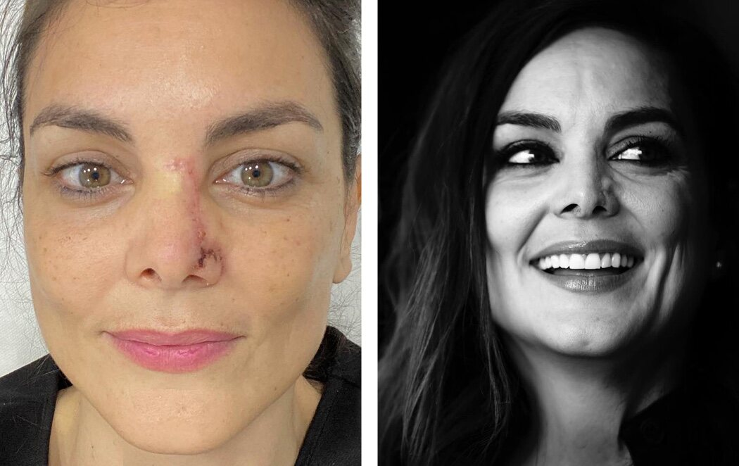 """El emotivo mensaje de Mónica Carrillo, un año después de su cáncer: """"Cicatrices profundas para que no olvidemos lo sucedido"""""""