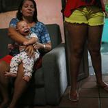 Un bebé con microcefalia en Brasil