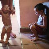 Más de 4.000 casos de microcefalia en Brasil
